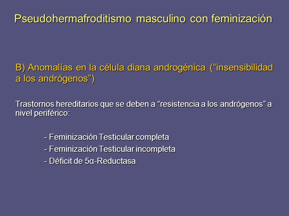 Pseudohermafroditismo masculino con feminización