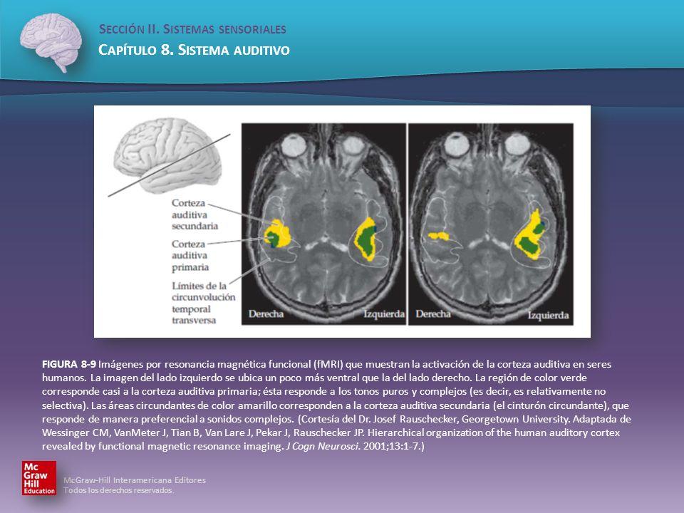 FIGURA 8-9 Imágenes por resonancia magnética funcional (fMRI) que muestran la activación de la corteza auditiva en seres humanos.