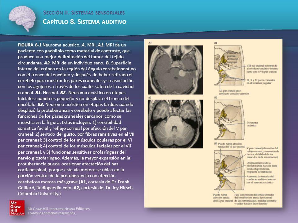 FIGURA 8-1 Neuroma acústico. A. MRI. A1