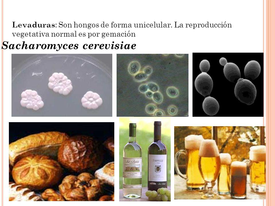 Sacharomyces cerevisiae