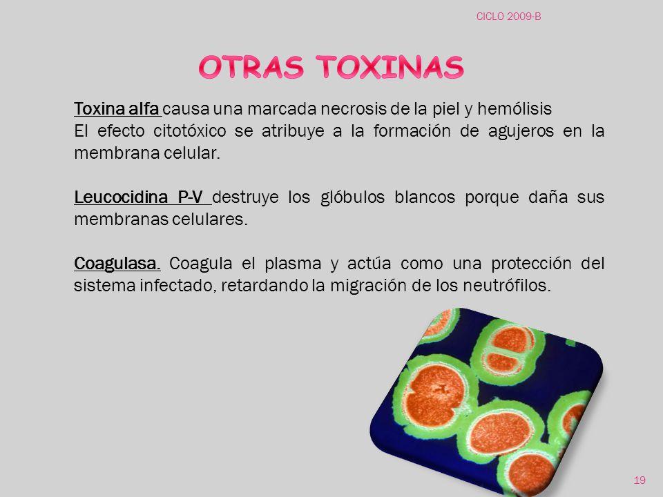 CICLO 2009-B OTRAS TOXINAS. Toxina alfa causa una marcada necrosis de la piel y hemólisis.