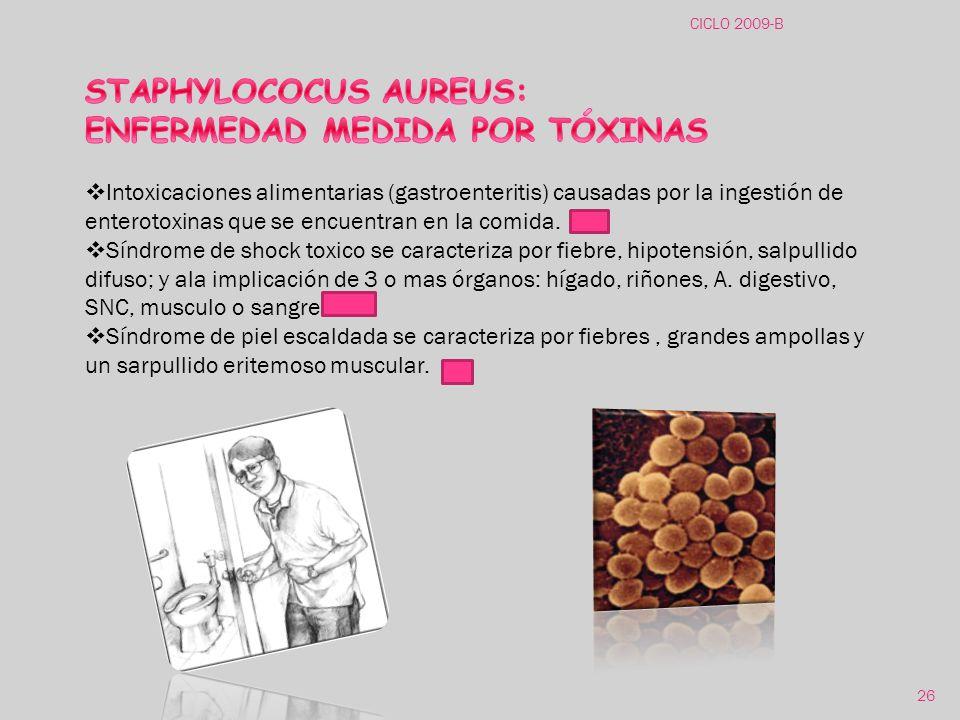 STAPHYLOCOCUS AUREUS: ENFERMEDAD MEDIDA POR TÓXINAS