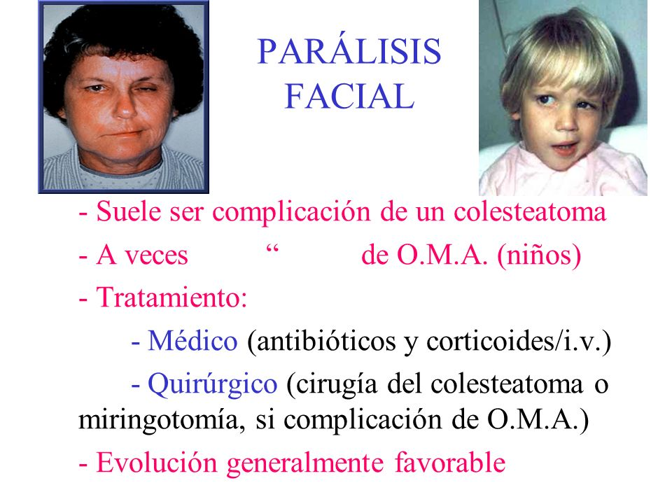 PARÁLISIS FACIAL - Suele ser complicación de un colesteatoma