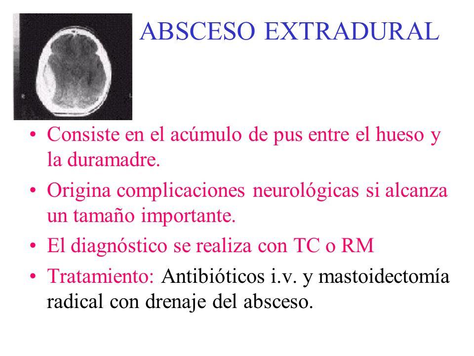 ABSCESO EXTRADURAL Consiste en el acúmulo de pus entre el hueso y la duramadre. Origina complicaciones neurológicas si alcanza un tamaño importante.