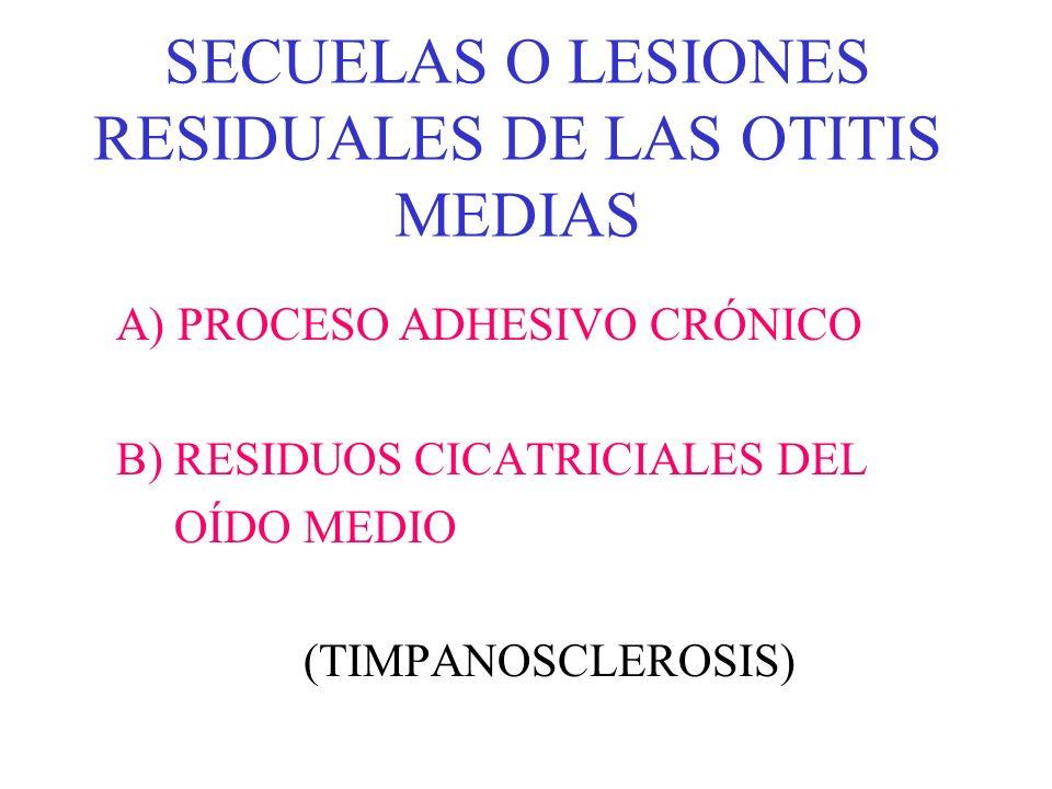 SECUELAS O LESIONES RESIDUALES DE LAS OTITIS MEDIAS