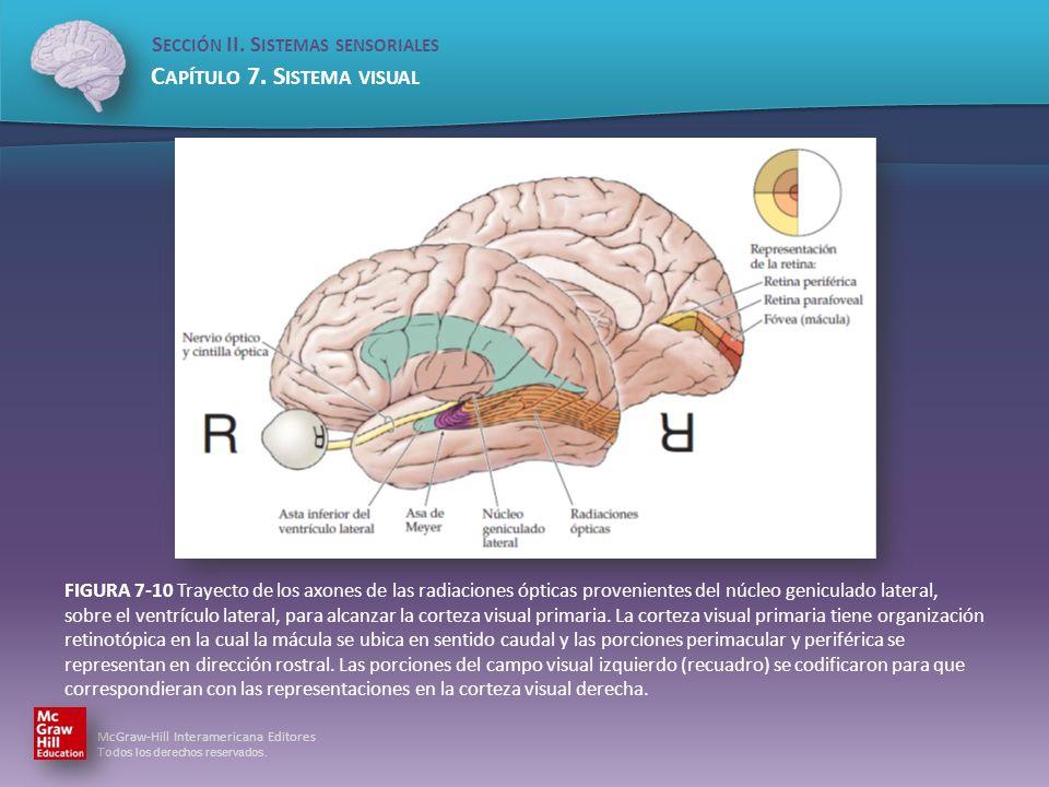 FIGURA 7-10 Trayecto de los axones de las radiaciones ópticas provenientes del núcleo geniculado lateral, sobre el ventrículo lateral, para alcanzar la corteza visual primaria.