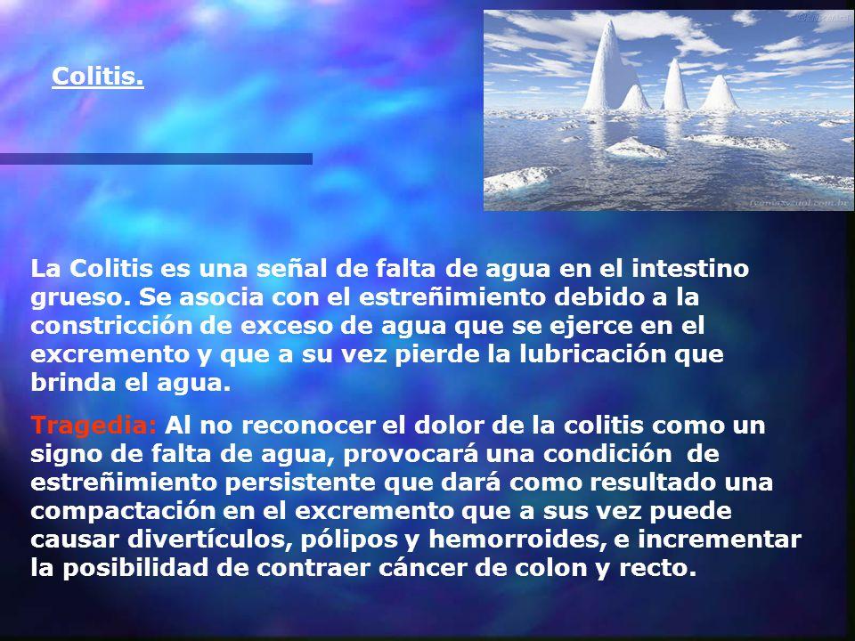 Colitis.