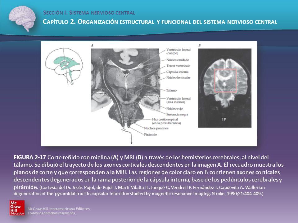 FIGURA 2-17 Corte teñido con mielina (A) y MRI (B) a través de los hemisferios cerebrales, al nivel del tálamo.