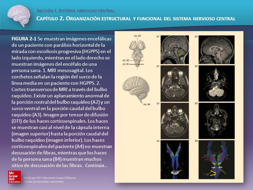 FIGURA 2-1 Se muestran imágenes encefálicas de un paciente con parálisis horizontal de la mirada con escoliosis progresiva (HGPPS) en el lado izquierdo, mientras en el lado derecho se muestran imágenes del encéfalo de una persona sana.