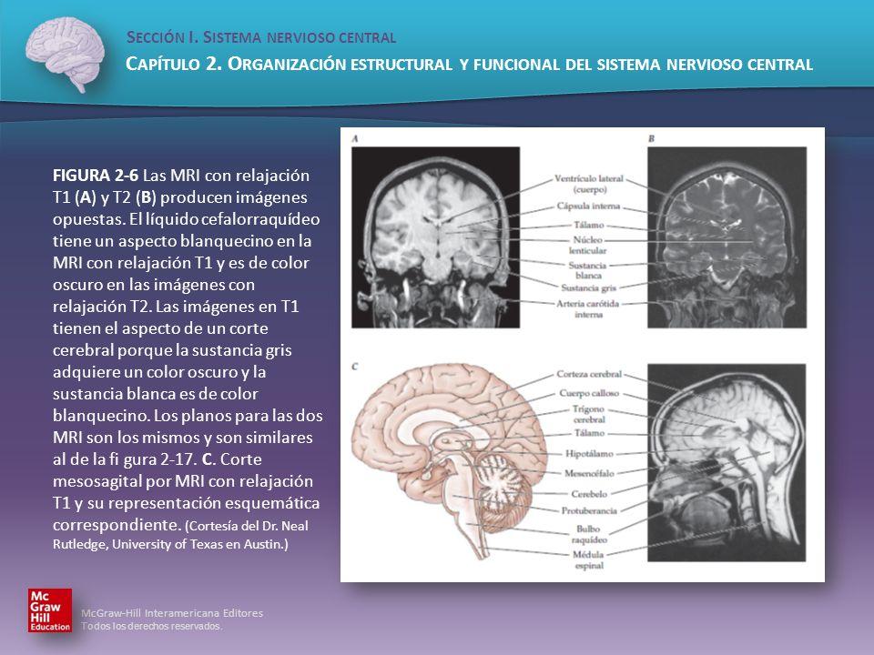 FIGURA 2-6 Las MRI con relajación T1 (A) y T2 (B) producen imágenes opuestas.