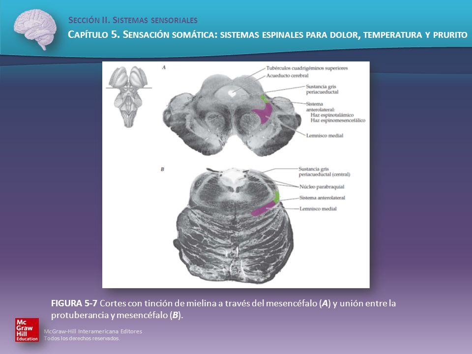 FIGURA 5-7 Cortes con tinción de mielina a través del mesencéfalo (A) y unión entre la protuberancia y mesencéfalo (B).