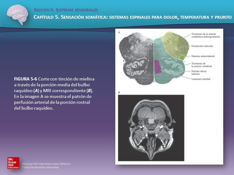 FIGURA 5-6 Corte con tinción de mielina a través de la porción media del bulbo raquídeo (A) y MRI correspondiente (B).