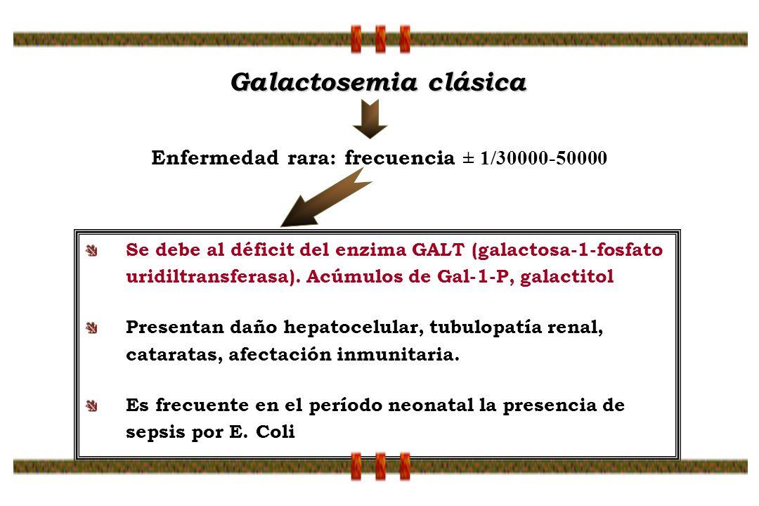 Enfermedad rara: frecuencia ± 1/30000-50000