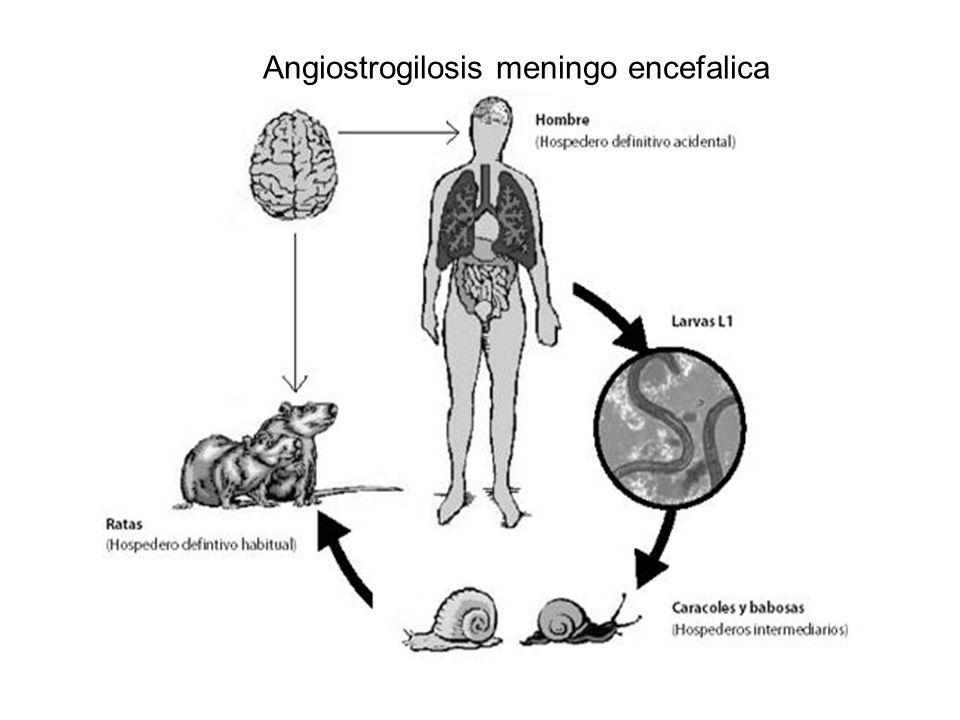 Angiostrogilosis meningo encefalica