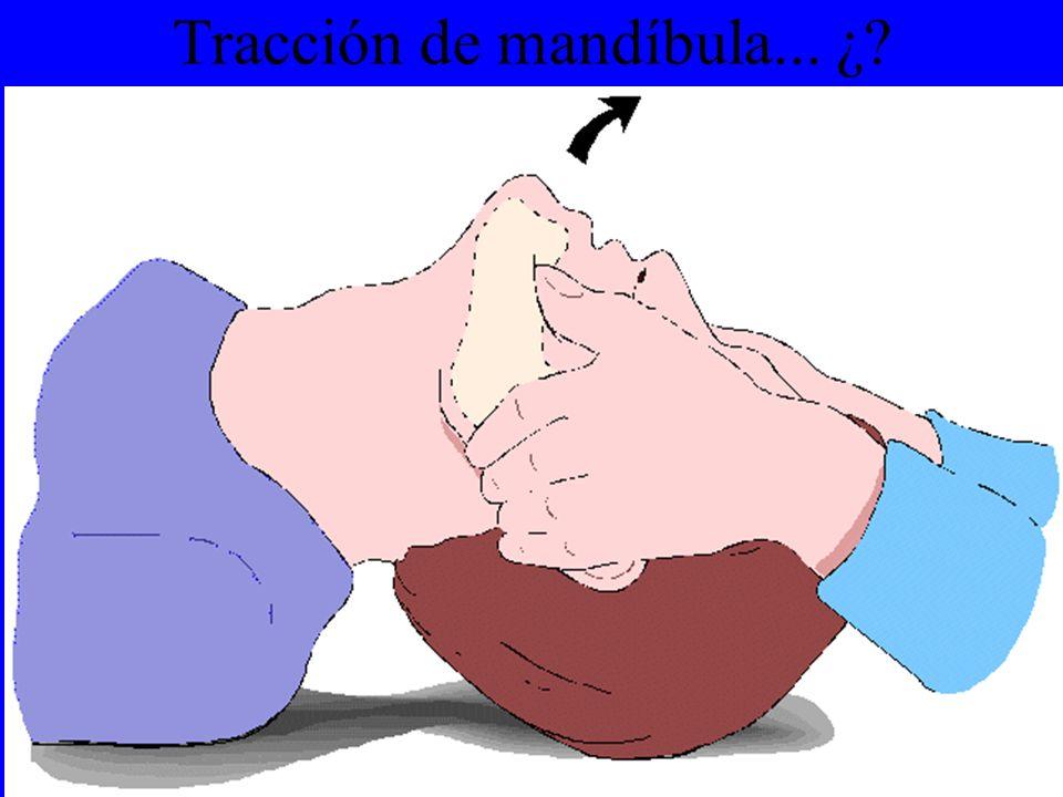 Tracción de mandíbula... ¿