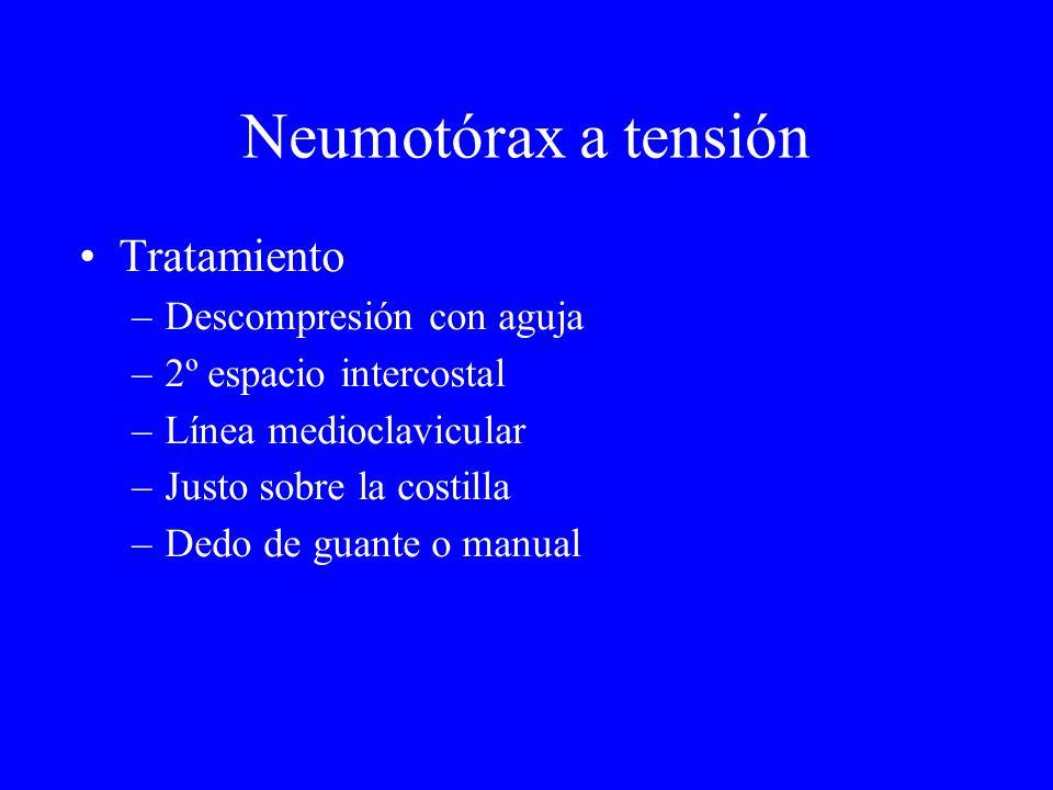 Neumotórax a tensión Tratamiento Descompresión con aguja