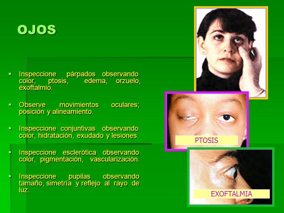OJOS Inspeccione párpados observando color, ptosis, edema, orzuelo, exoftalmio.
