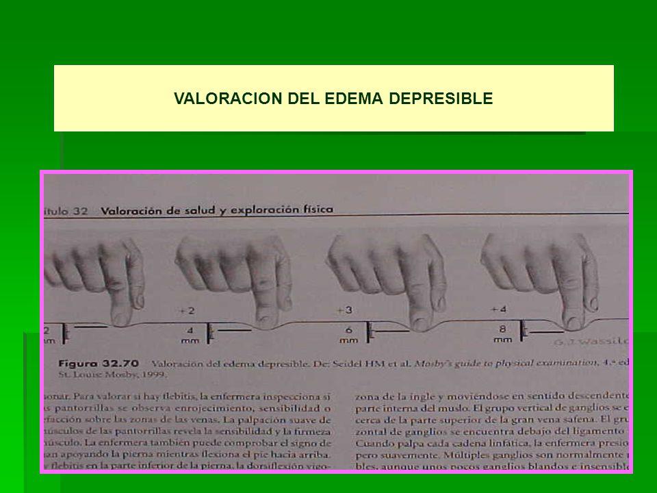 VALORACION DEL EDEMA DEPRESIBLE