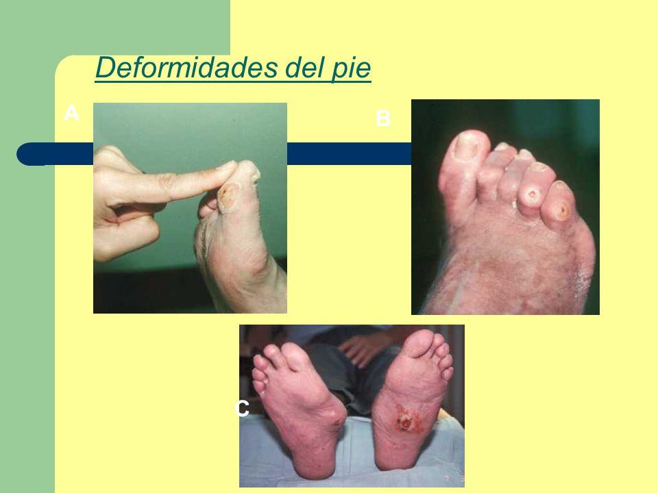 Deformidades del pie A B C