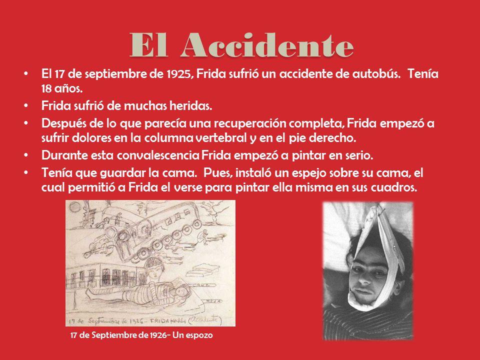 El Accidente El 17 de septiembre de 1925, Frida sufrió un accidente de autobús. Tenía 18 años. Frida sufrió de muchas heridas.