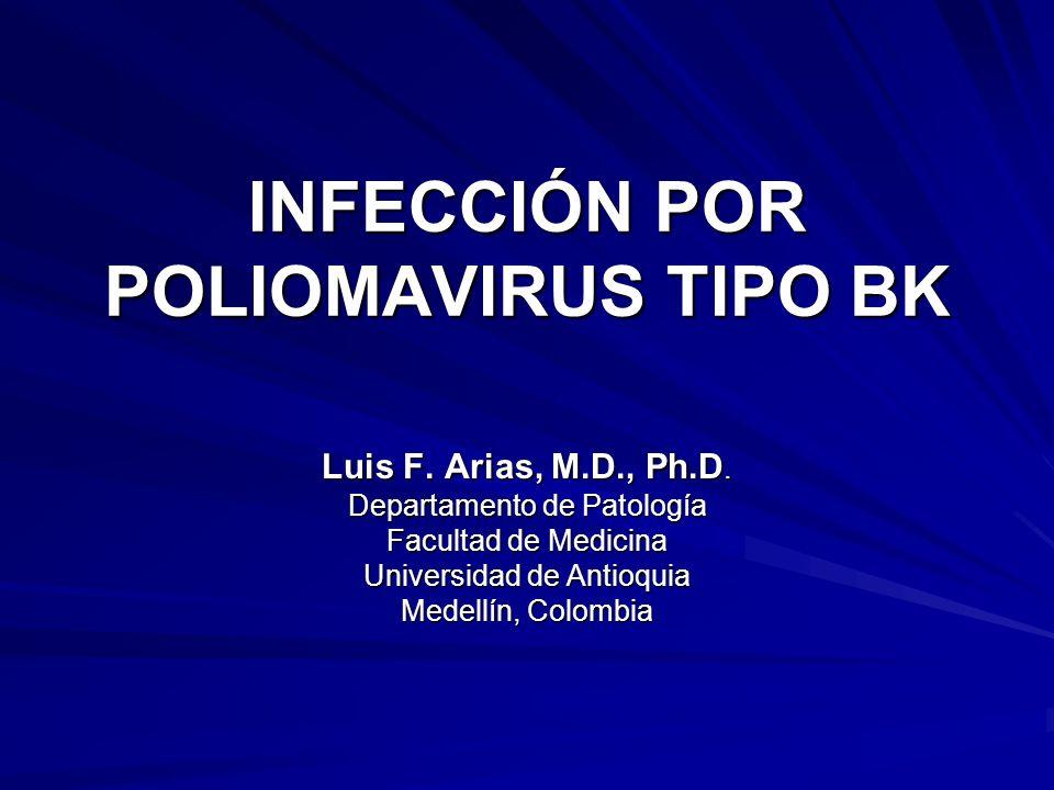 INFECCIÓN POR POLIOMAVIRUS TIPO BK