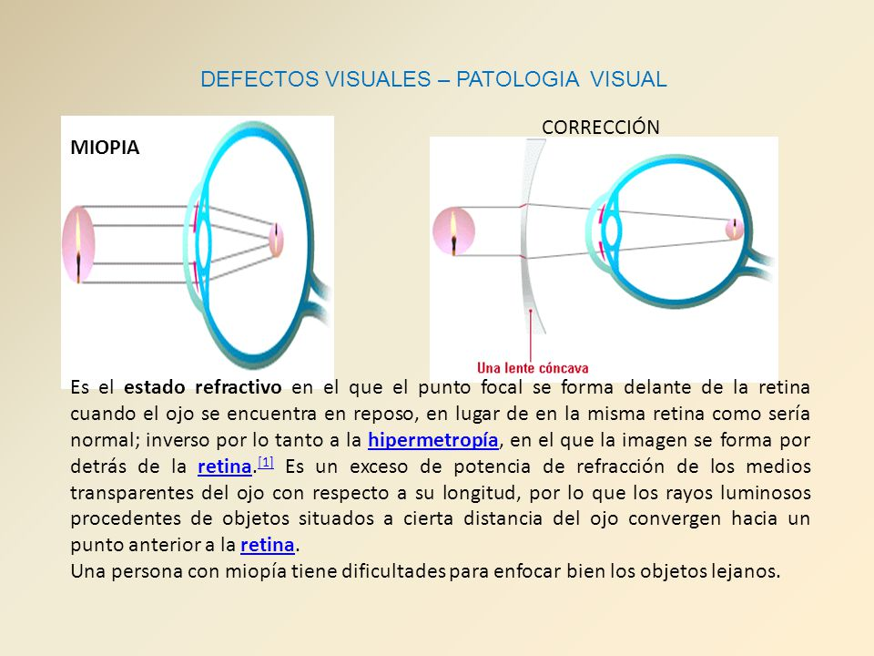 DEFECTOS VISUALES – PATOLOGIA VISUAL