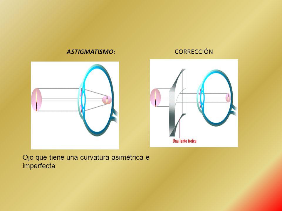 ASTIGMATISMO: CORRECCIÓN Ojo que tiene una curvatura asimétrica e imperfecta