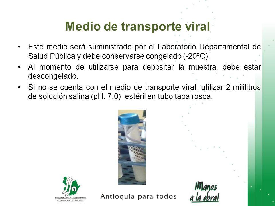 Medio de transporte viral