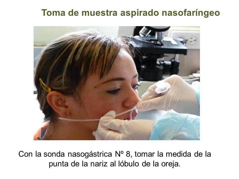 Toma de muestra aspirado nasofaríngeo