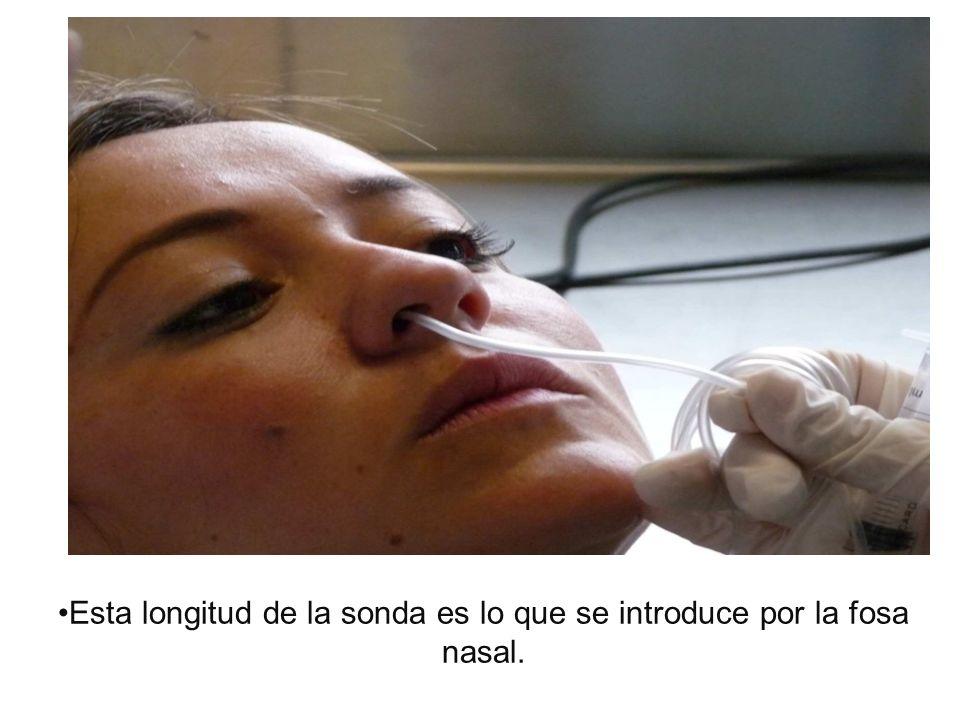 Esta longitud de la sonda es lo que se introduce por la fosa nasal.