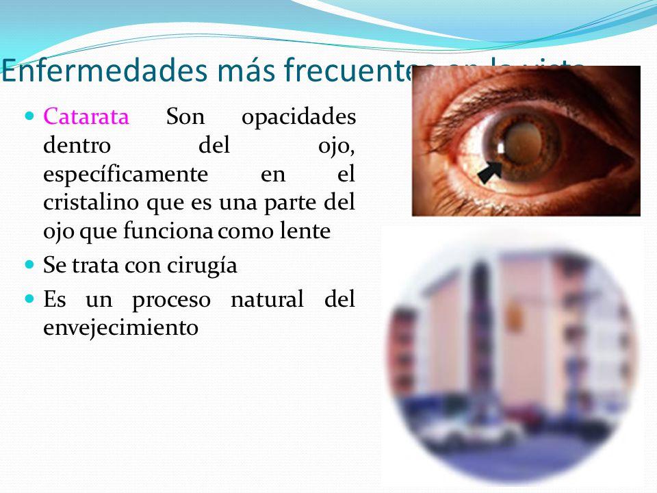 Enfermedades más frecuentes en la vista