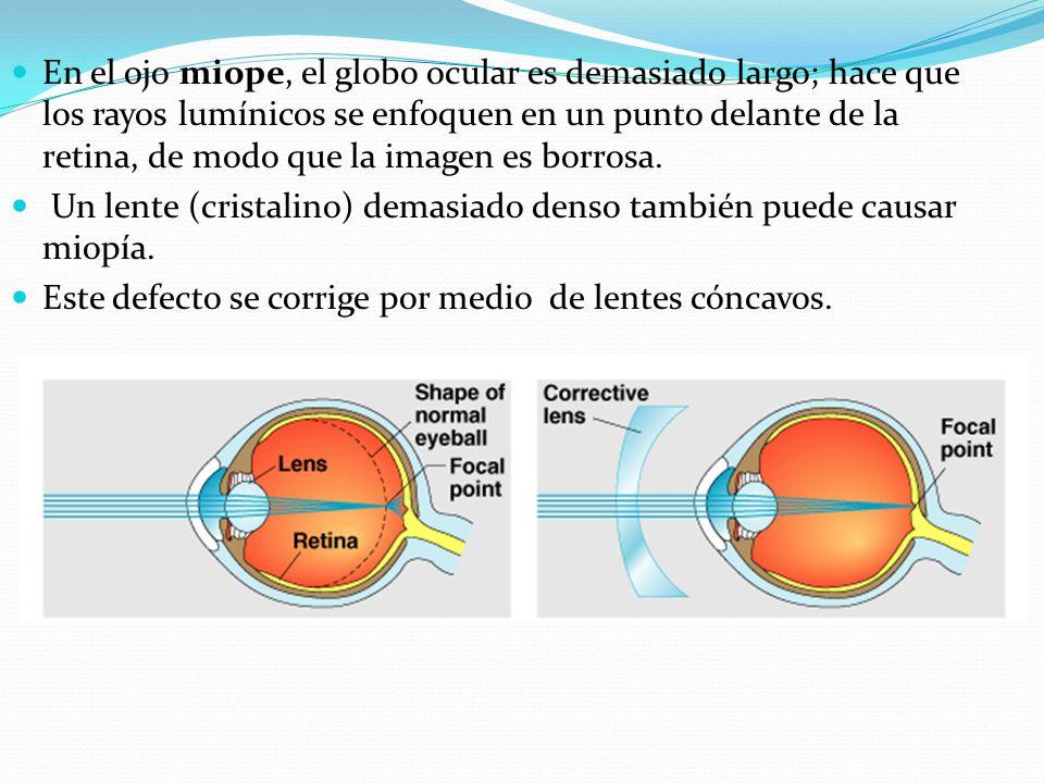En el ojo miope, el globo ocular es demasiado largo; hace que los rayos lumínicos se enfoquen en un punto delante de la retina, de modo que la imagen es borrosa.