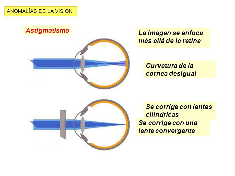 La imagen se enfoca más allá de la retina