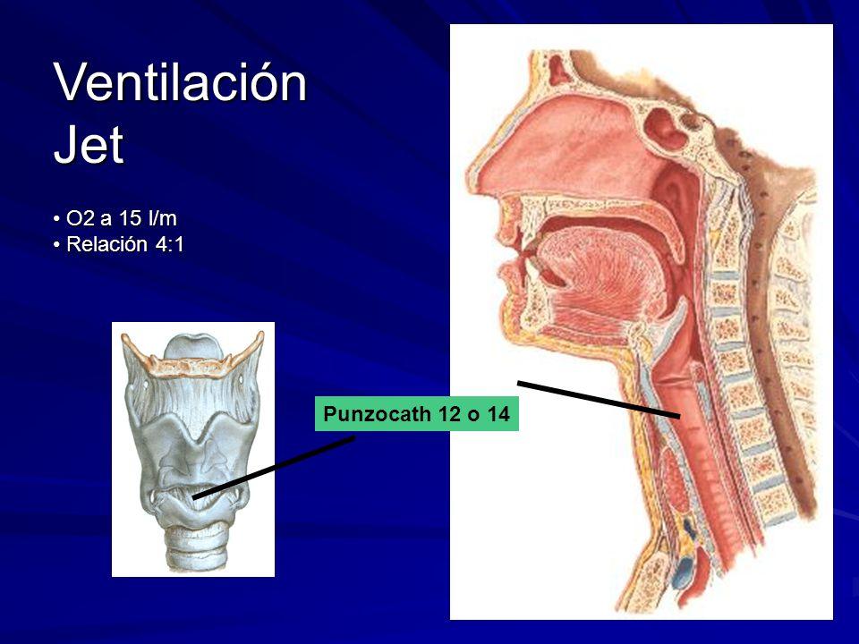 Ventilación Jet O2 a 15 l/m Relación 4:1 Punzocath 12 o 14