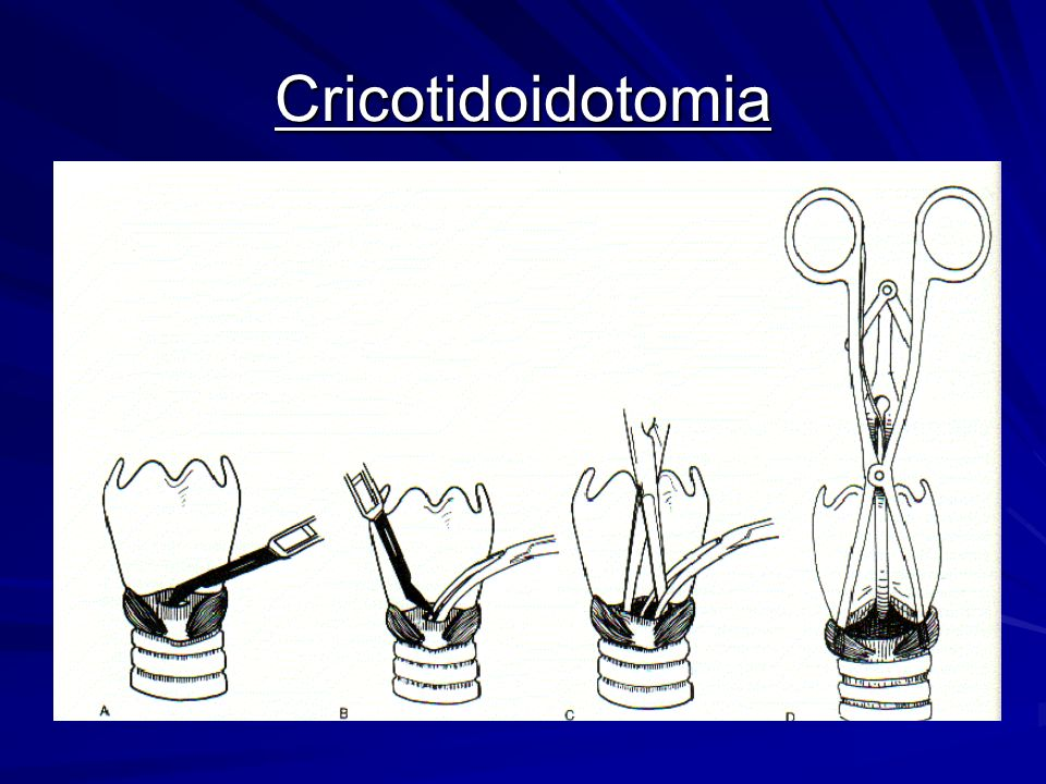 Cricotidoidotomia