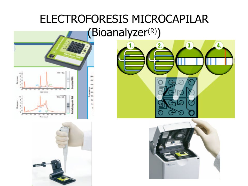 ELECTROFORESIS MICROCAPILAR (Bioanalyzer(R))