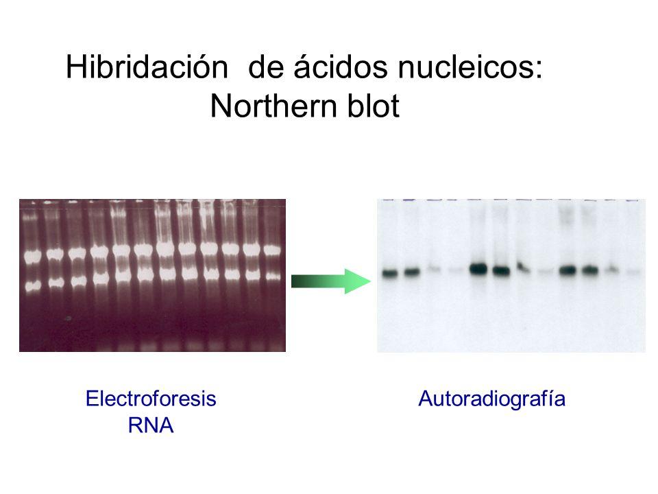 Hibridación de ácidos nucleicos: Northern blot