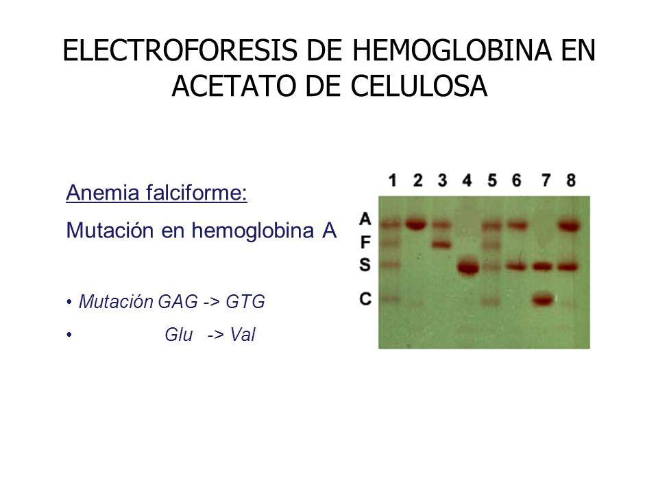 ELECTROFORESIS DE HEMOGLOBINA EN ACETATO DE CELULOSA