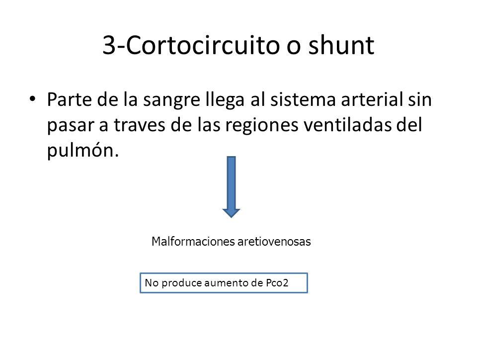 3-Cortocircuito o shunt
