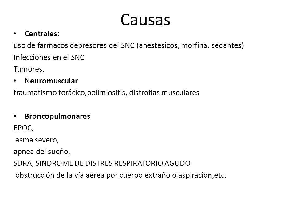 Causas Centrales: uso de farmacos depresores del SNC (anestesicos, morfina, sedantes) Infecciones en el SNC.