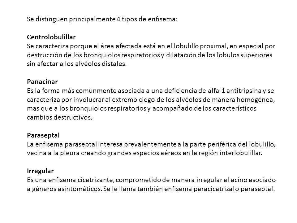 Se distinguen principalmente 4 tipos de enfisema: