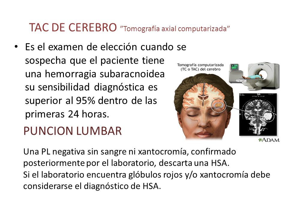 TAC DE CEREBRO Tomografía axial computarizada