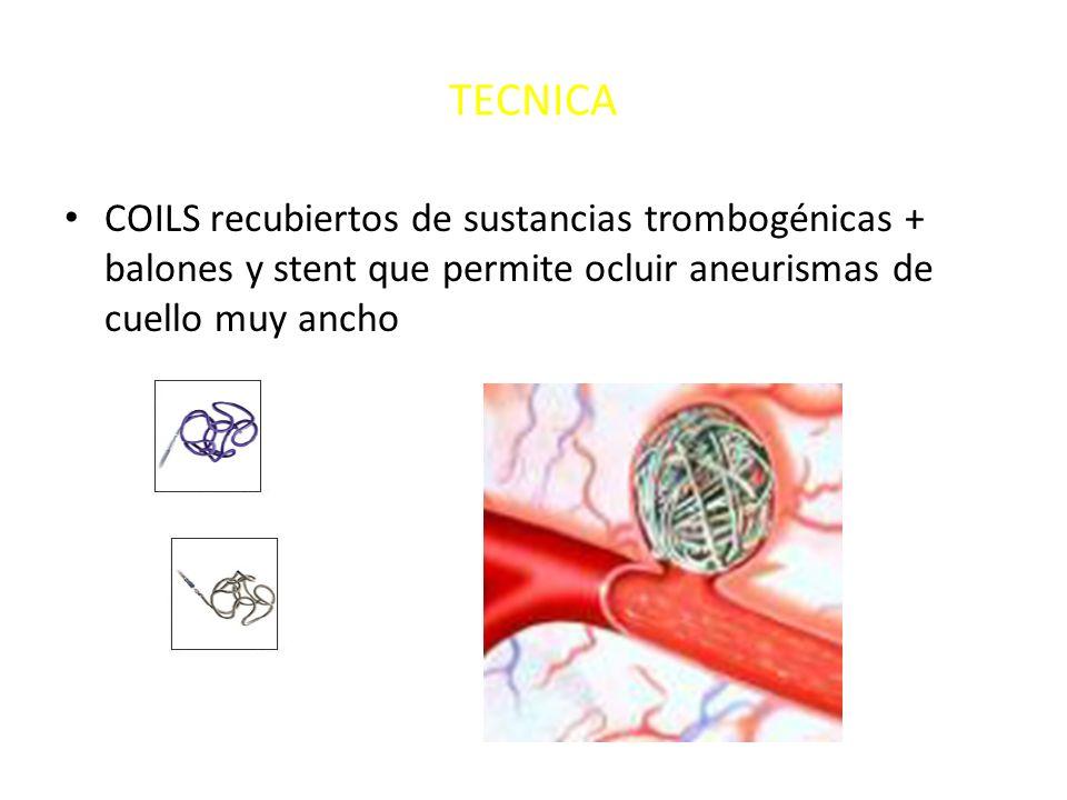 TECNICACOILS recubiertos de sustancias trombogénicas + balones y stent que permite ocluir aneurismas de cuello muy ancho.