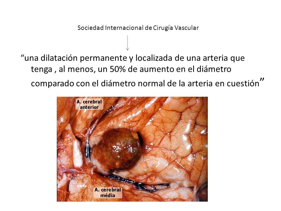 Sociedad Internacional de Cirugía Vascular