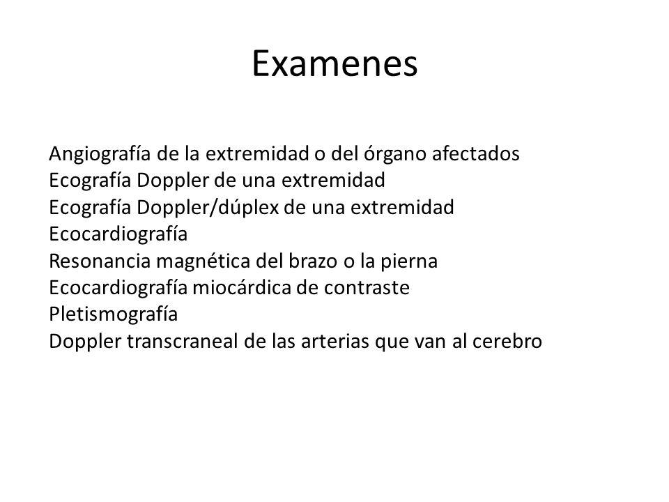 Examenes Angiografía de la extremidad o del órgano afectados