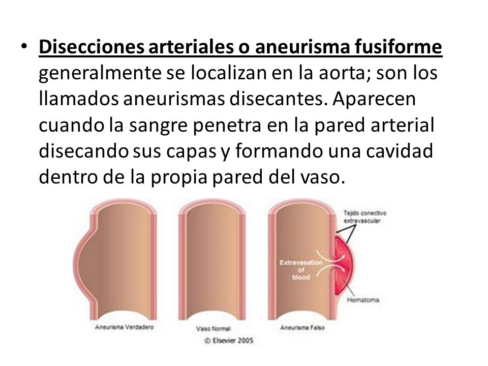 Disecciones arteriales o aneurisma fusiforme generalmente se localizan en la aorta; son los llamados aneurismas disecantes.