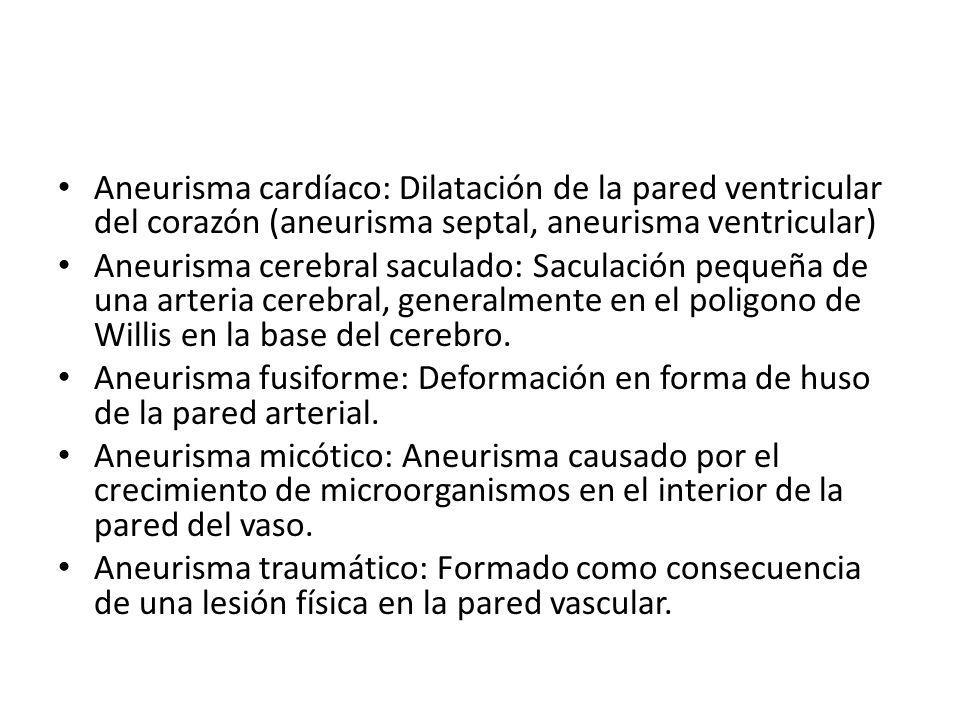 Aneurisma cardíaco: Dilatación de la pared ventricular del corazón (aneurisma septal, aneurisma ventricular)