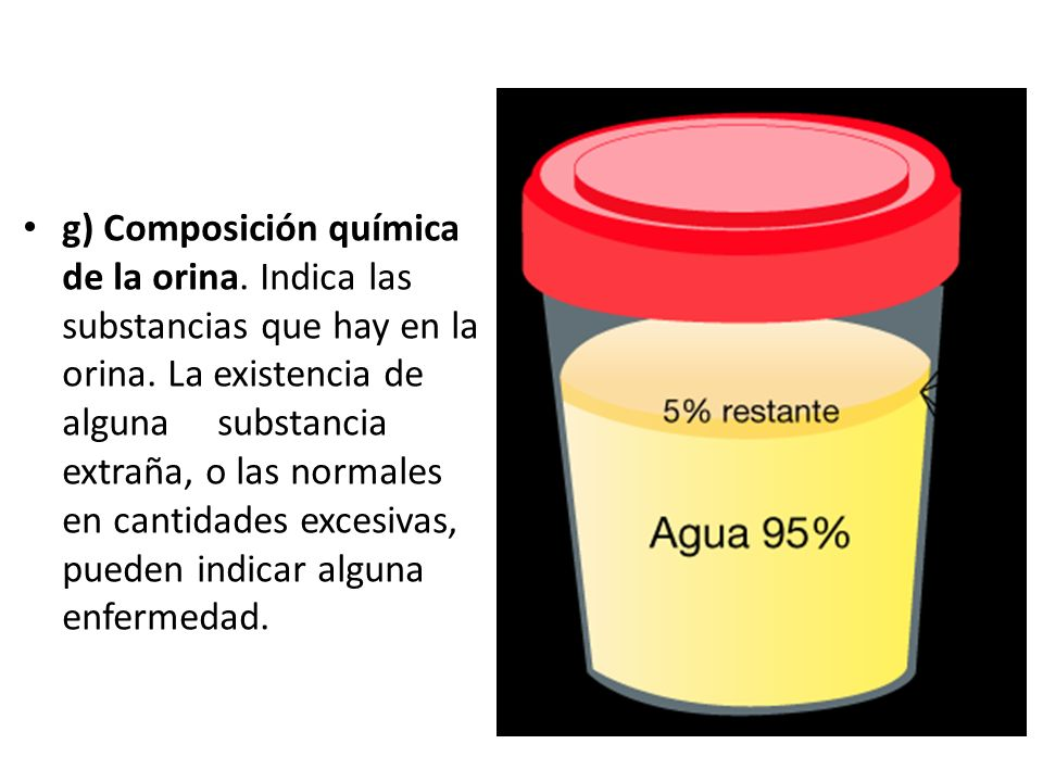 g) Composición química de la orina