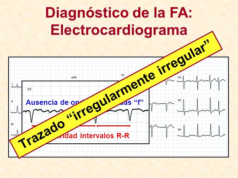 Diagnóstico de la FA: Electrocardiograma