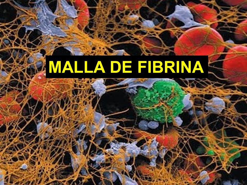 MALLA DE FIBRINA